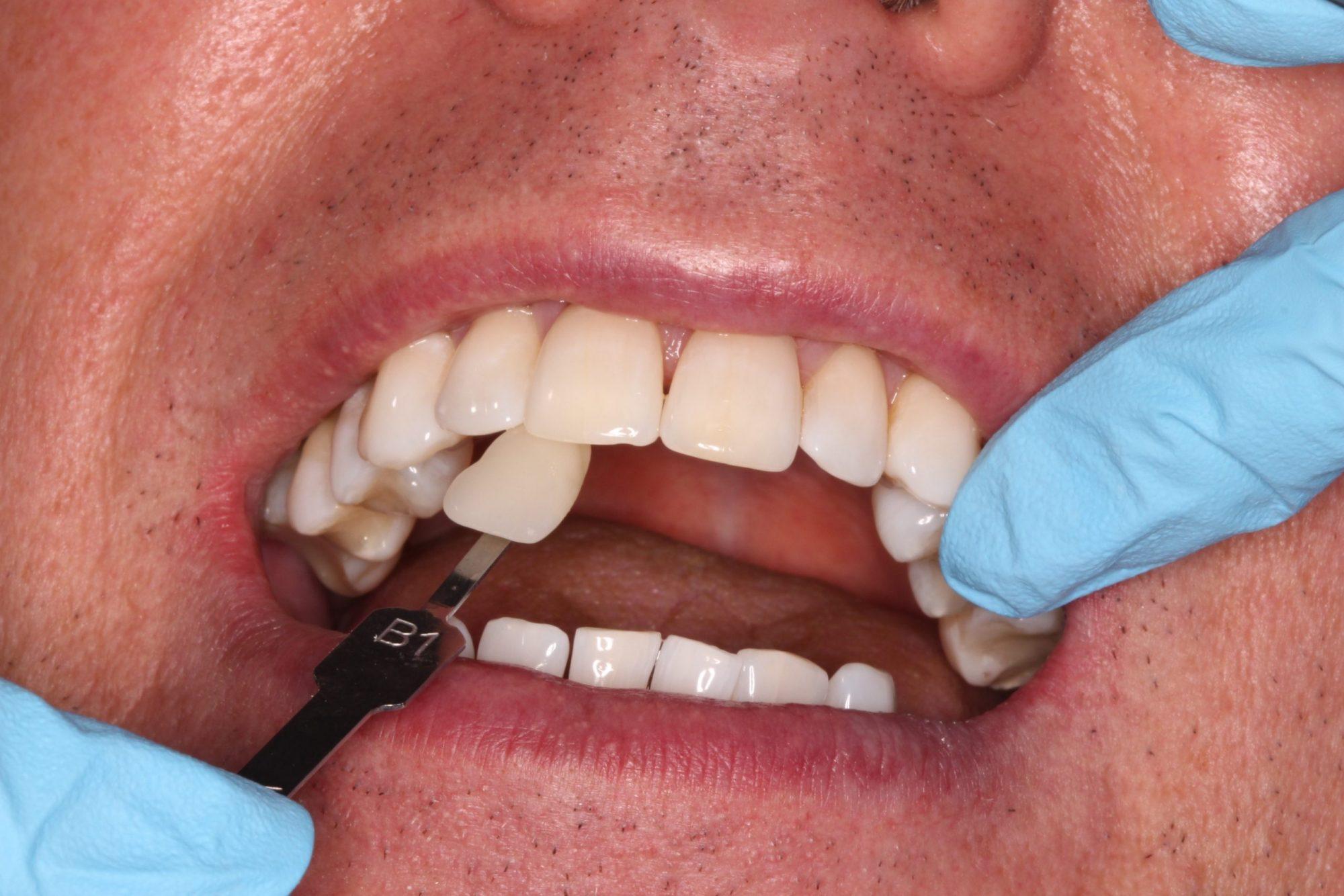 Teeth whitening colour match