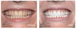 Enlighten teeth whitening milton keynes