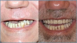 Robert Before and After Dental Implants