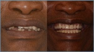 Guided Dental Implants - Milton Keynes 3