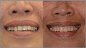 Guided Dental Implants - Milton Keynes 4