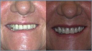 Guided Dental Implants - Milton Keynes 5