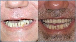 Guided Dental Implants - Milton Keynes 6