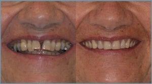 Guided Dental Implants - Milton Keynes 7