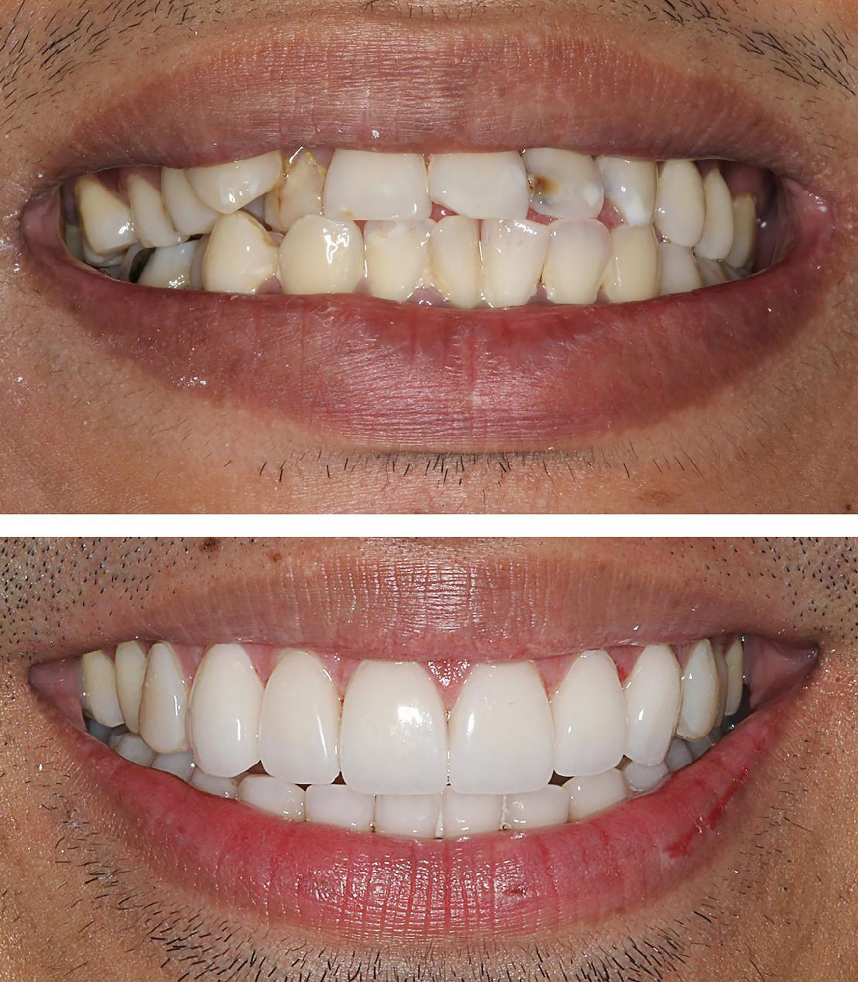 Cosmetic Dentistry 12