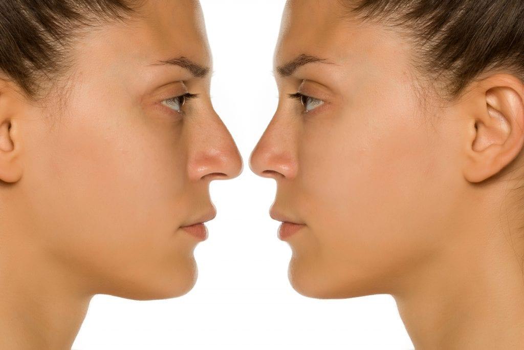 Non-Surgical Nose Job 1
