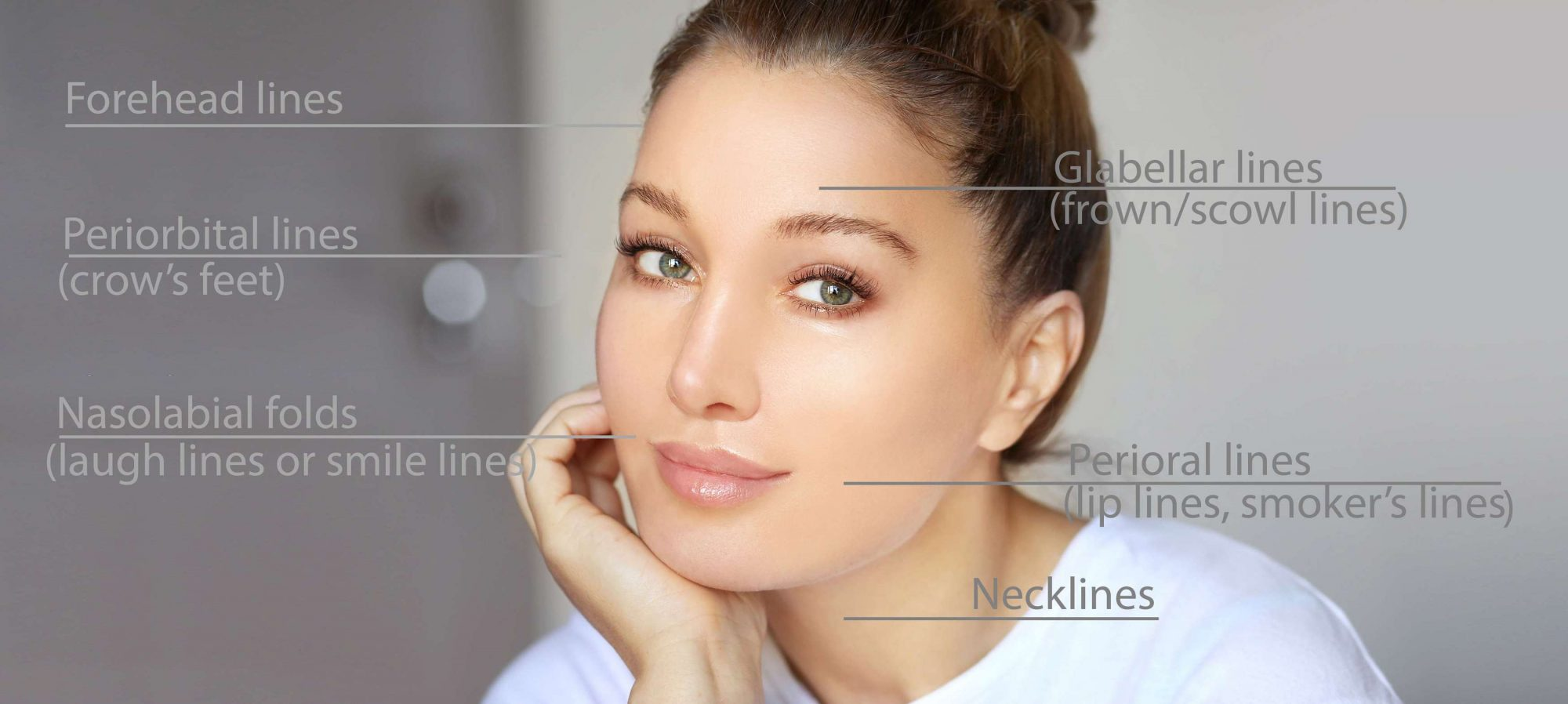 Anti-Wrinkle Injections 1