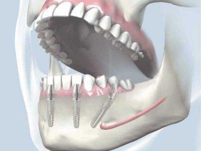 All-on-4-Dental-Implant-Image-e1537347492507.jpg
